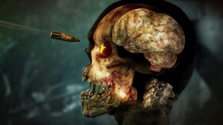 Zombie Army 4 X Ray