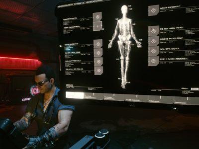 Cyberpunk 2077 Cyberware Implants Guide Ripperdoc 1